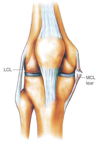 Mcl lcl injury probraces mcl lcl ccuart Image collections